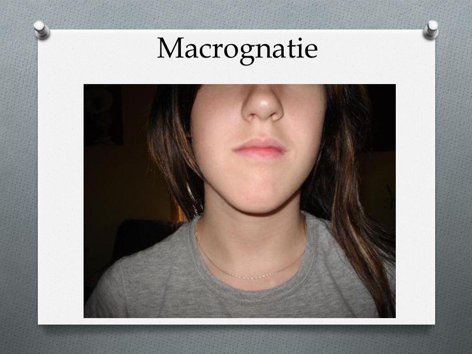 Macrognatie