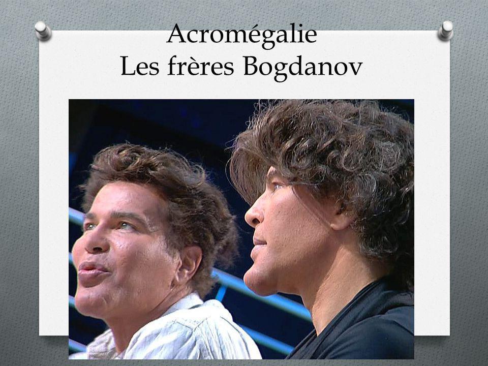 Acromégalie Les frères Bogdanov