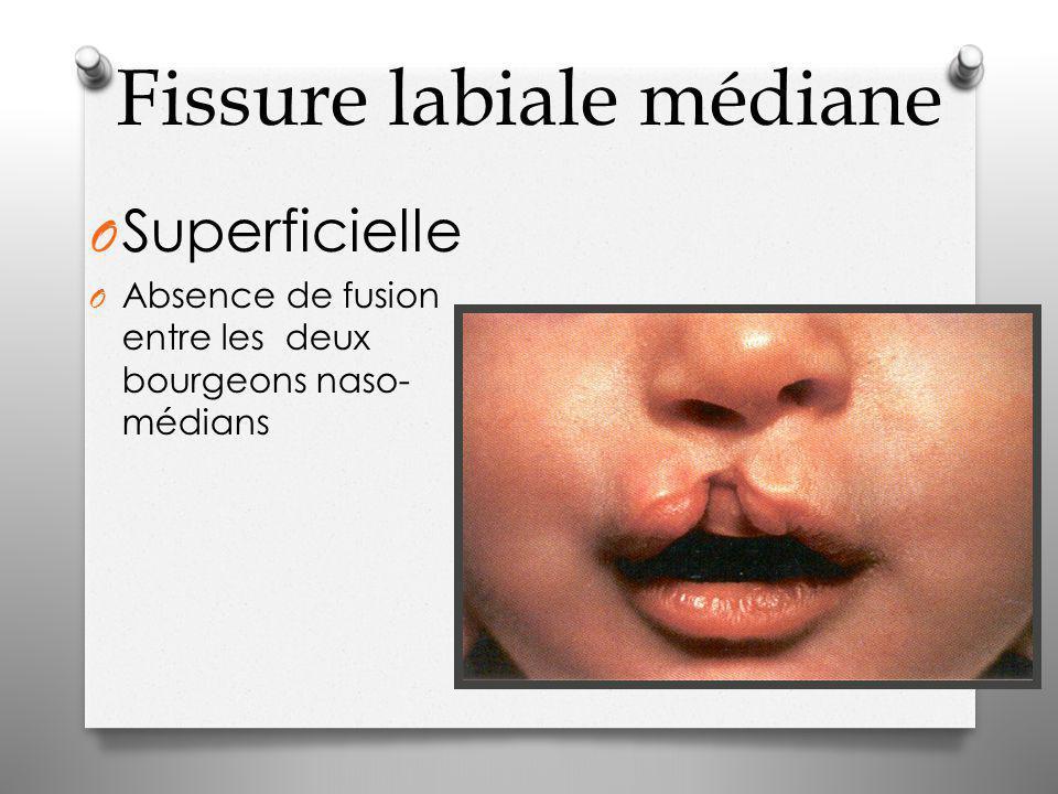 Fissure labiale médiane