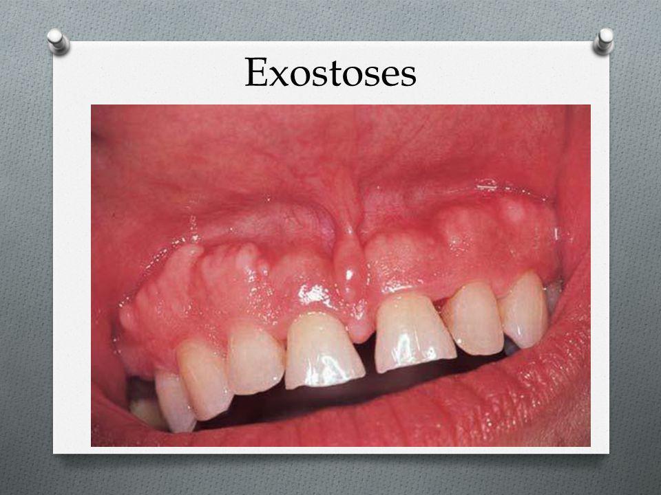 Exostoses