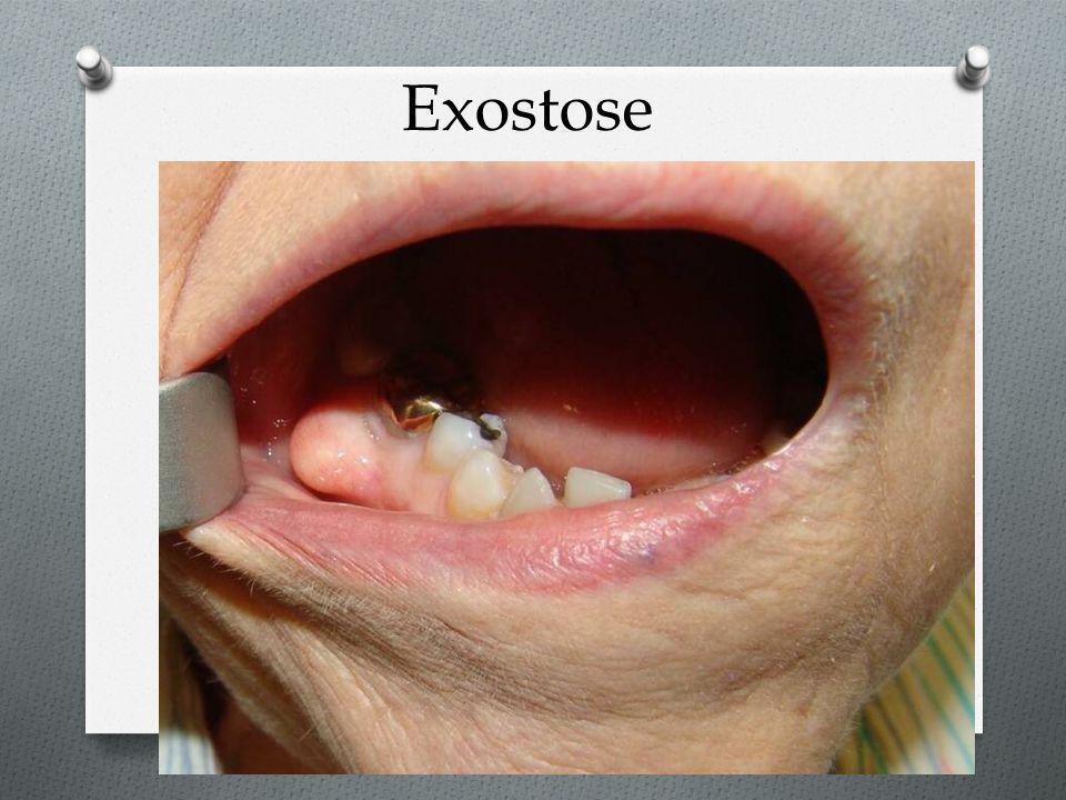 Exostose