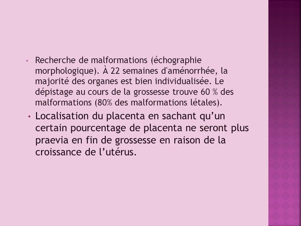 Recherche de malformations (échographie morphologique)