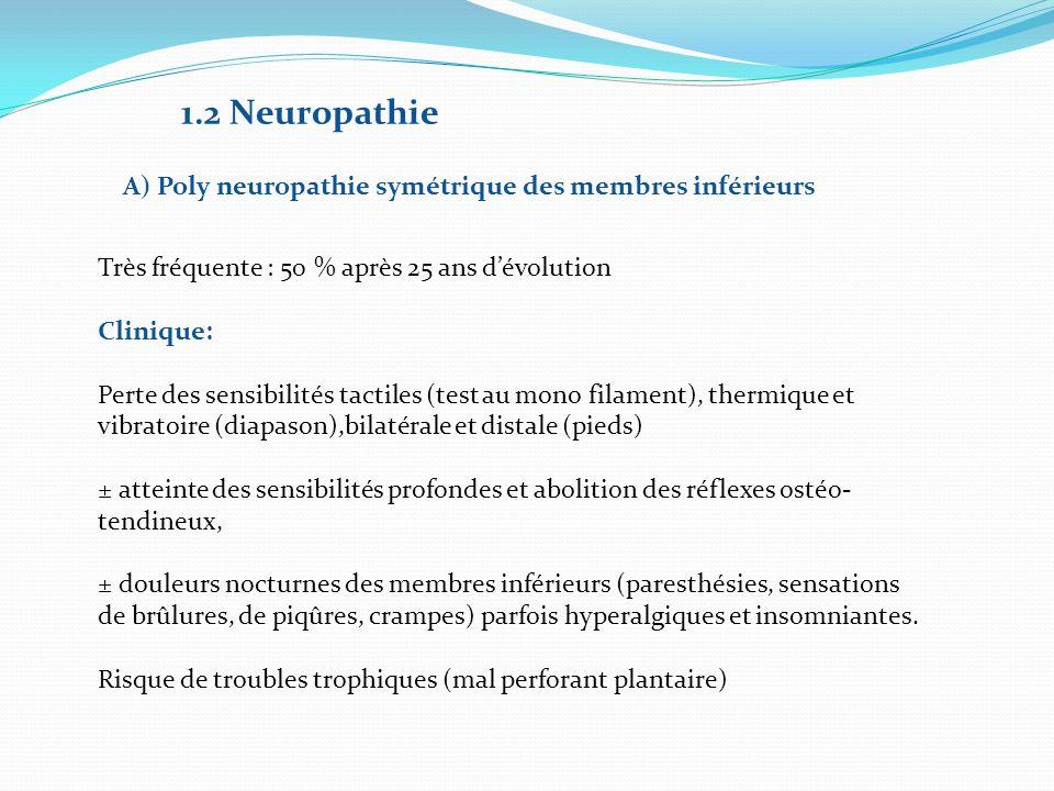 1.2 Neuropathie A) Poly neuropathie symétrique des membres inférieurs