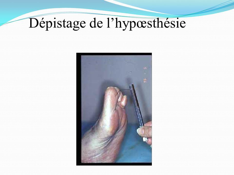 Dépistage de l'hypœsthésie