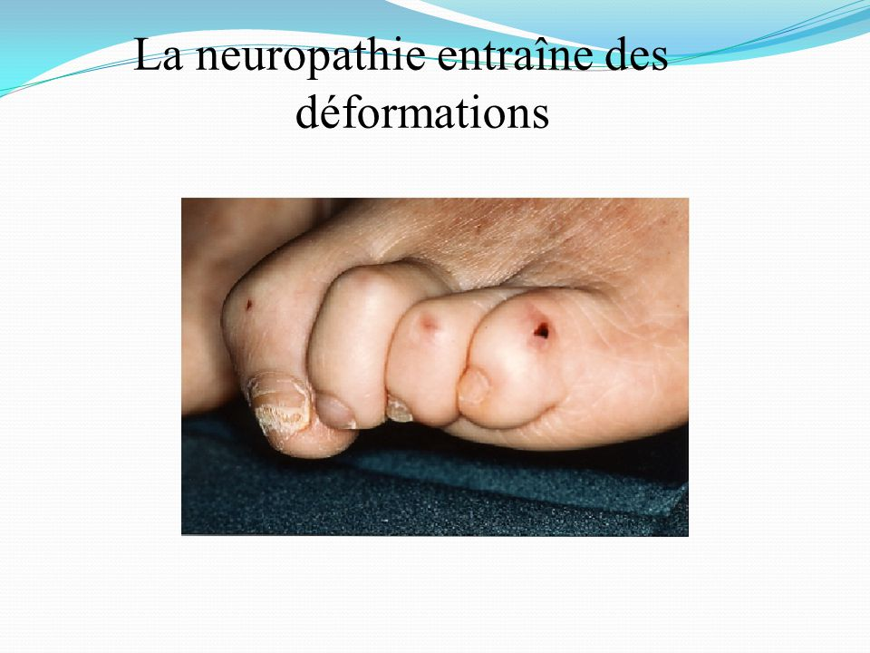 La neuropathie entraîne des