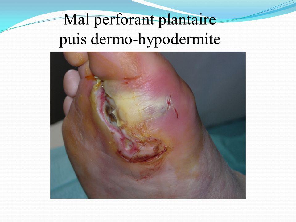 puis dermo-hypodermite