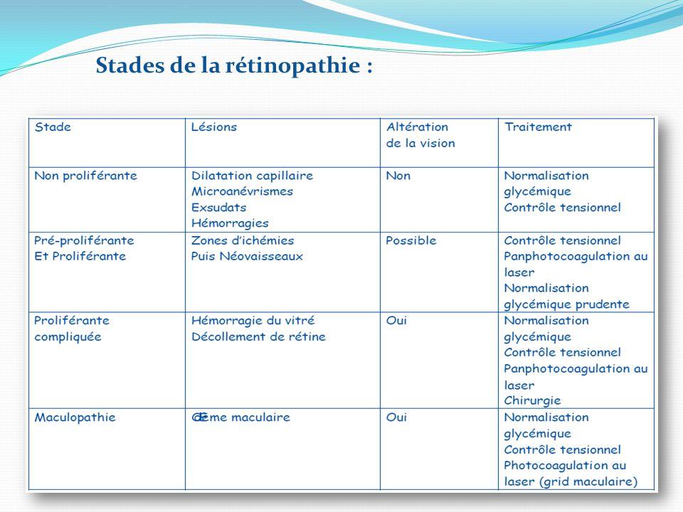 Stades de la rétinopathie :
