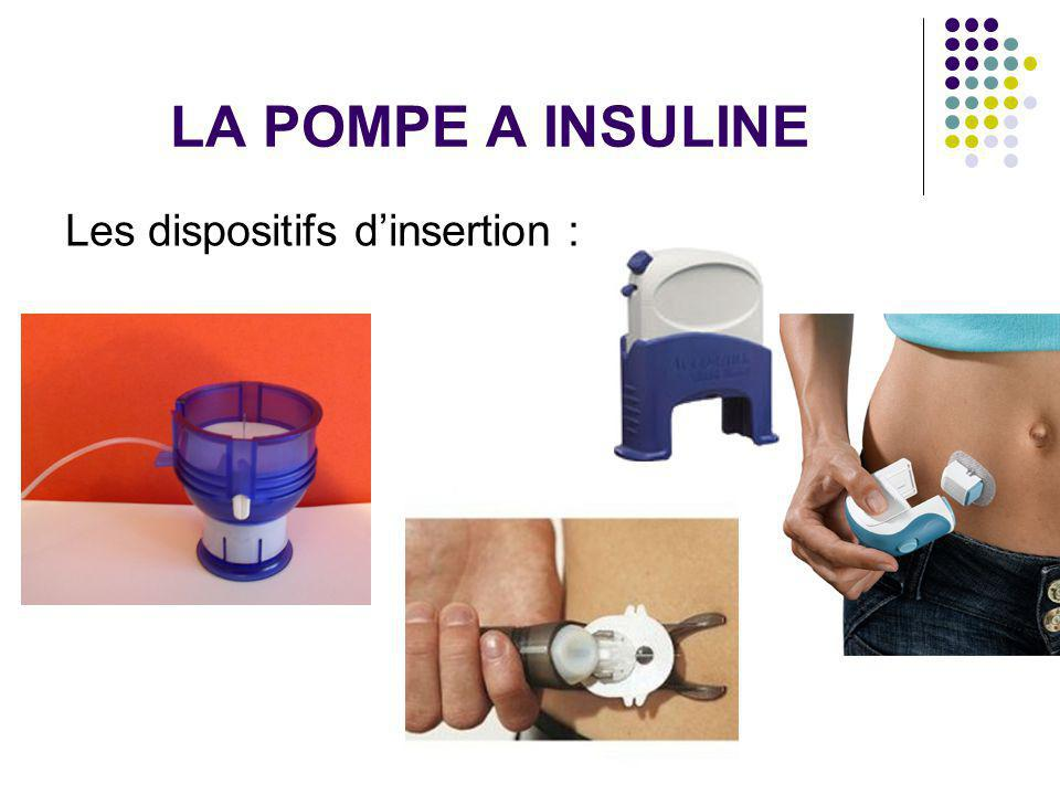 LA POMPE A INSULINE Les dispositifs d'insertion :