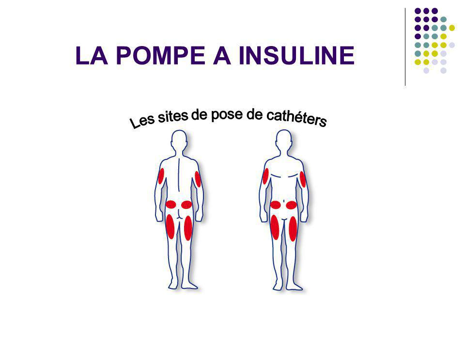 Les sites de pose de cathéters