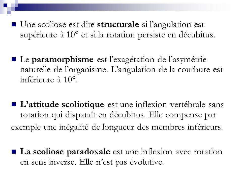 Une scoliose est dite structurale si l'angulation est supérieure à 10° et si la rotation persiste en décubitus.