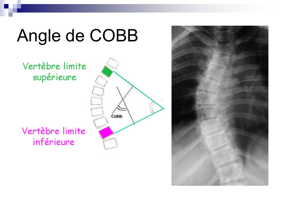 Angle de COBB