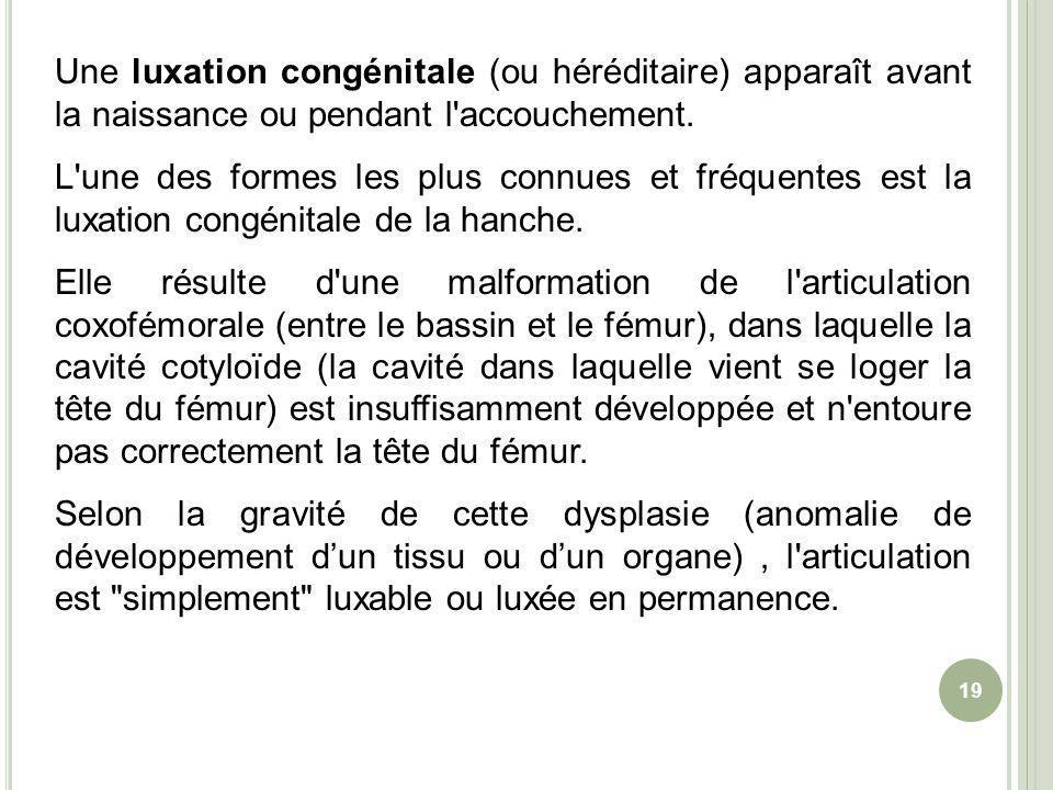 Une luxation congénitale (ou héréditaire) apparaît avant la naissance ou pendant l accouchement.