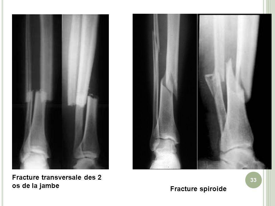 Fracture transversale des 2 os de la jambe