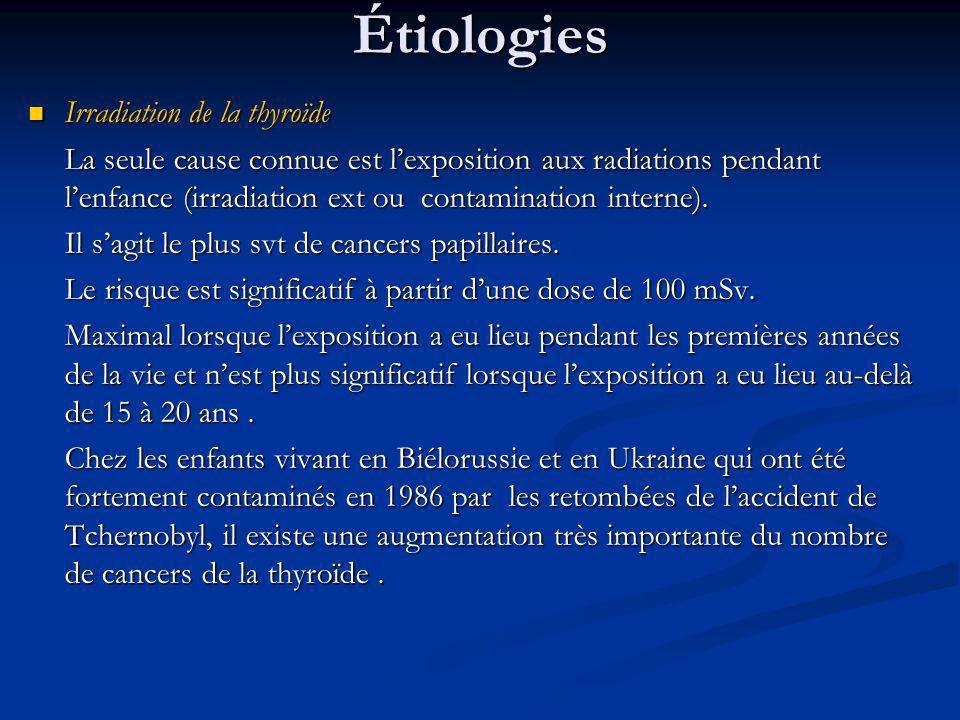 Étiologies Irradiation de la thyroïde
