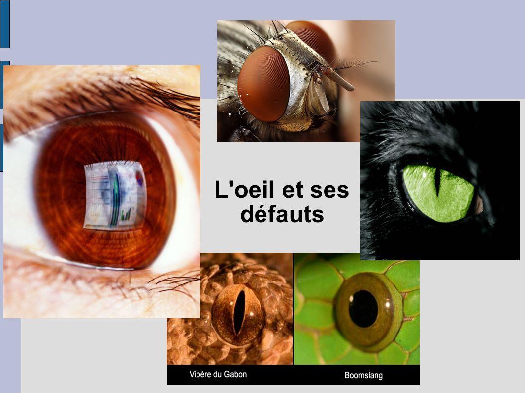 L oeil et ses défauts