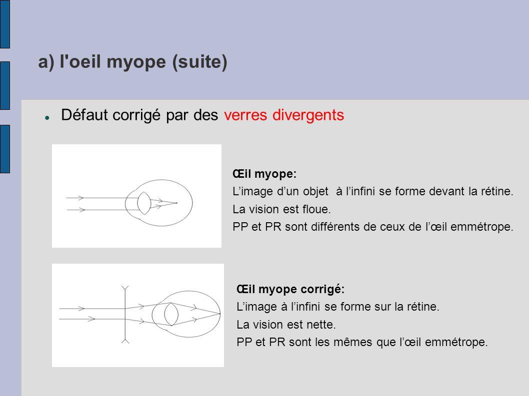 a) l oeil myope (suite) Défaut corrigé par des verres divergents