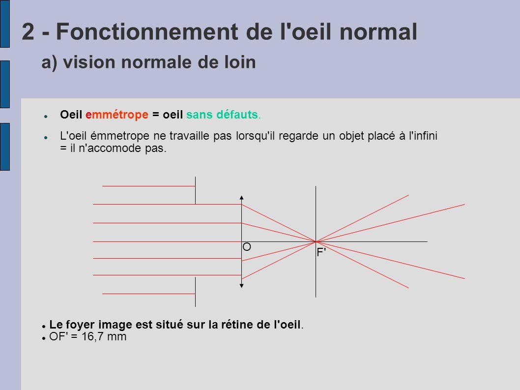 2 - Fonctionnement de l oeil normal a) vision normale de loin