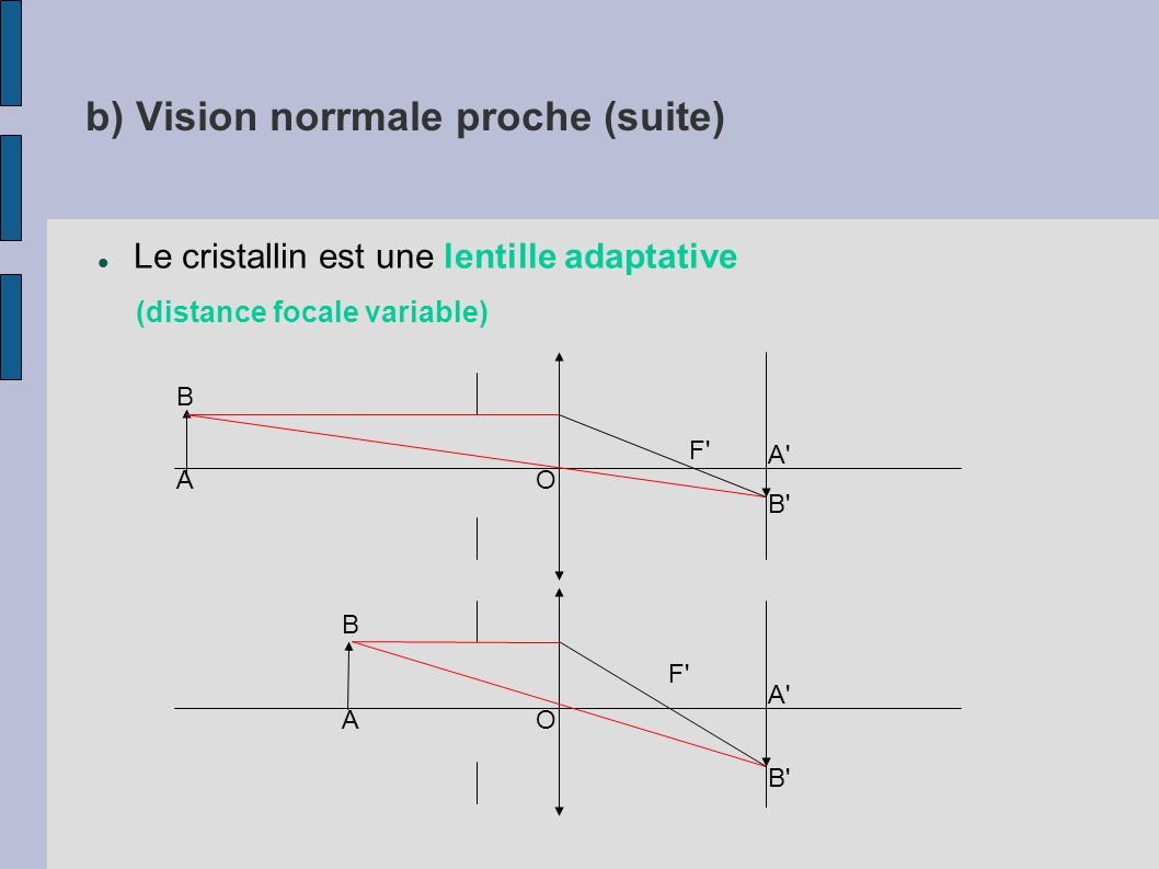 b) Vision norrmale proche (suite)