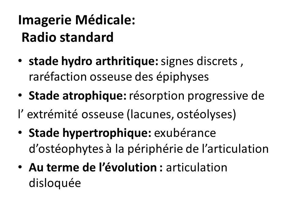Imagerie Médicale: Radio standard