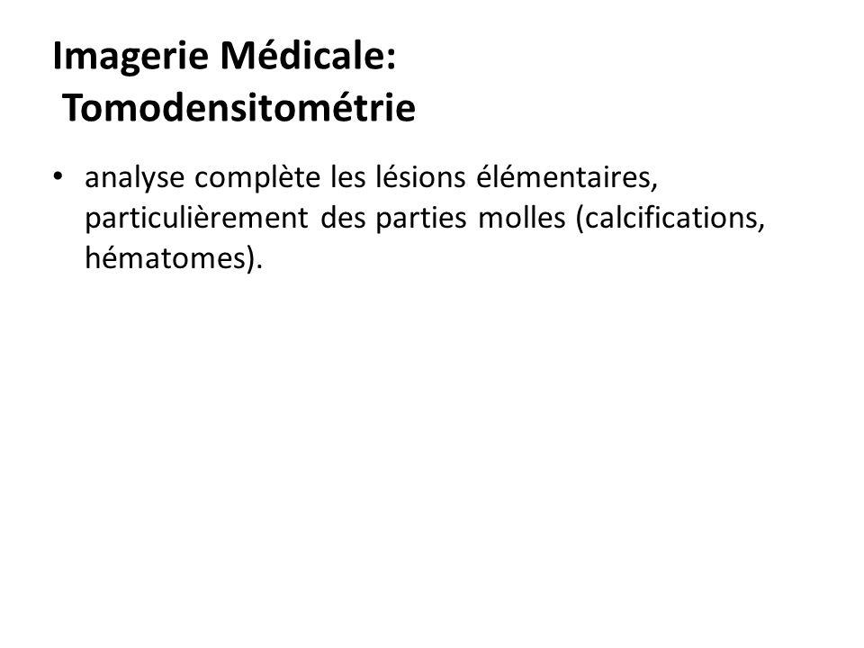 Imagerie Médicale: Tomodensitométrie