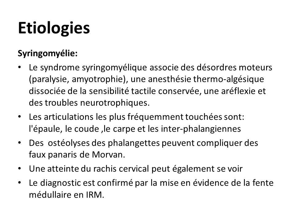 Etiologies Syringomyélie:
