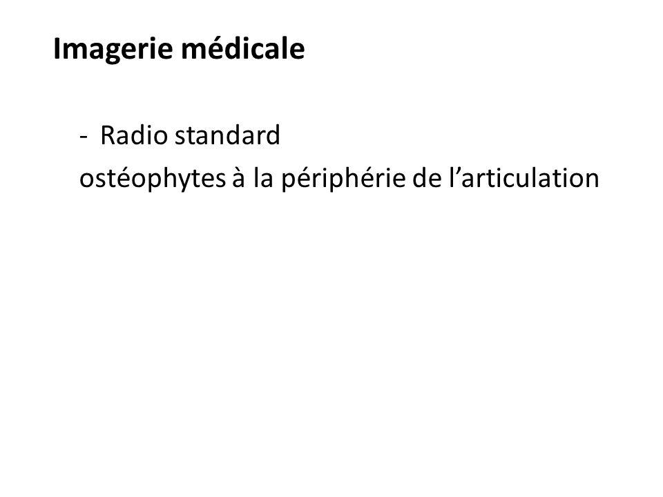 Imagerie médicale Radio standard ostéophytes à la périphérie de l'articulation