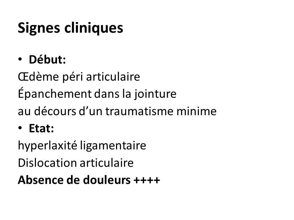 Signes cliniques Début: Œdème péri articulaire