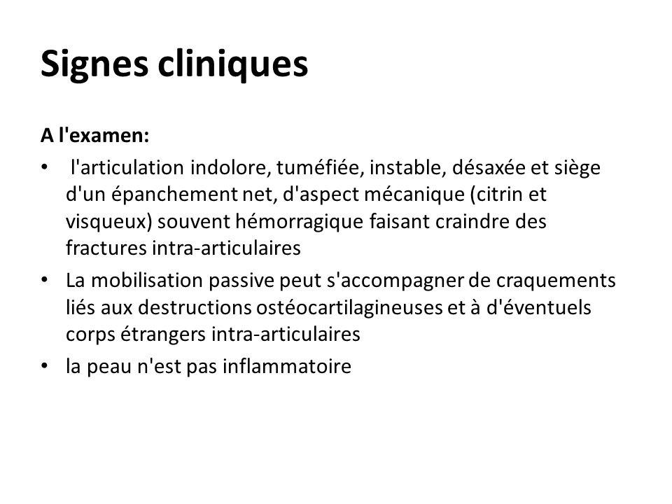 Signes cliniques A l examen: