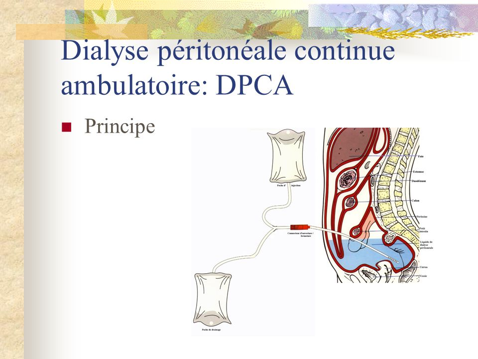 Dialyse péritonéale continue ambulatoire: DPCA