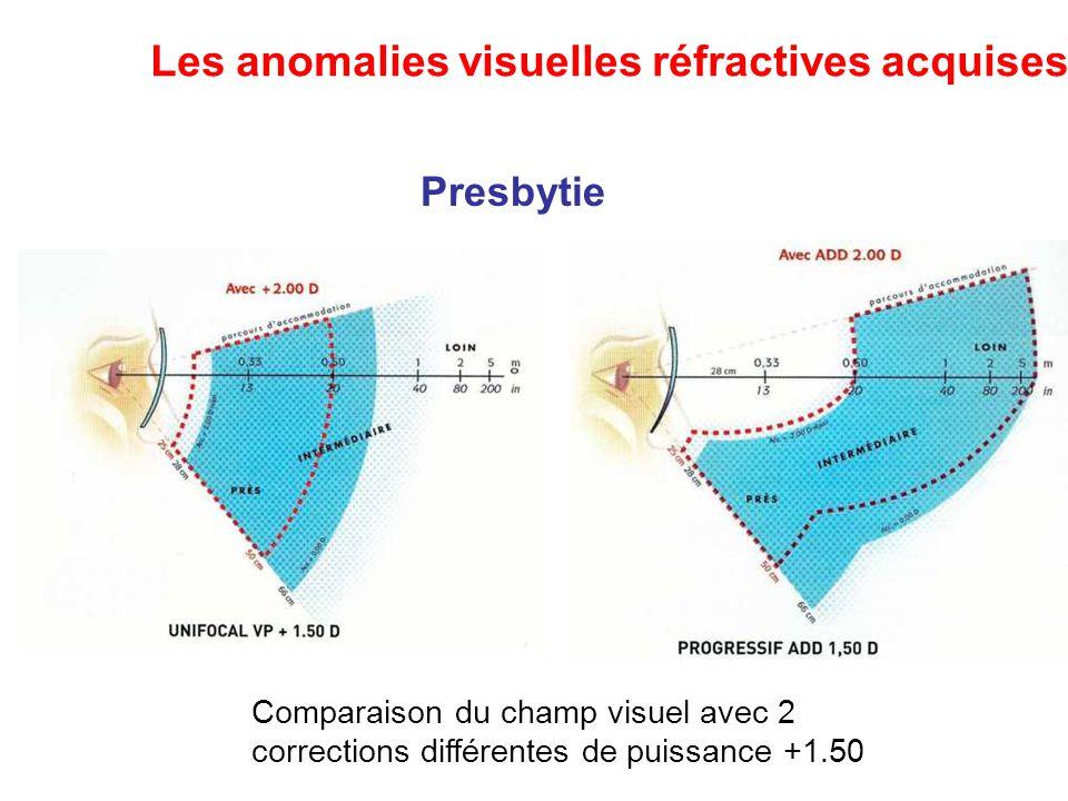 Les anomalies visuelles réfractives acquises
