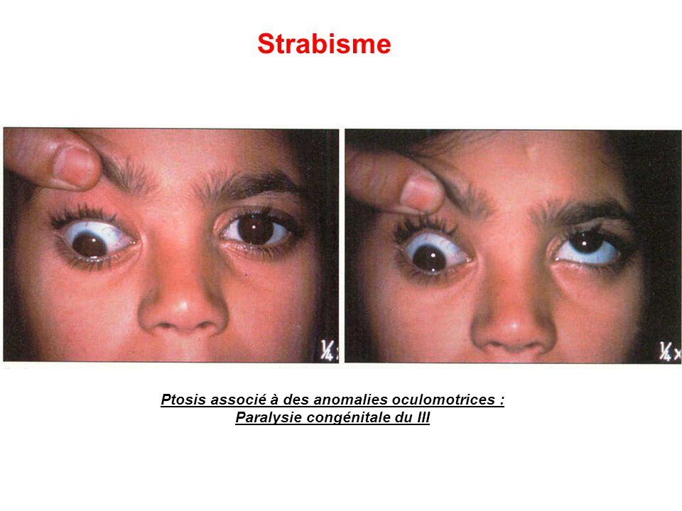 Strabisme Ptosis associé à des anomalies oculomotrices : Paralysie congénitale du III