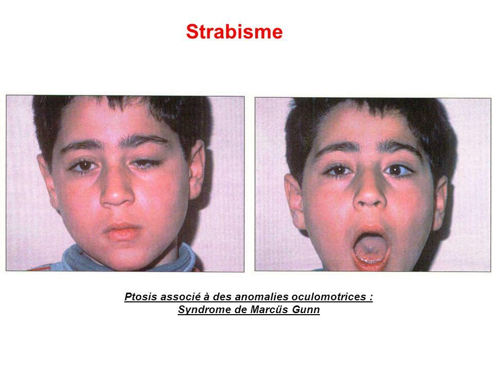 Ptosis associé à des anomalies oculomotrices : Syndrome de Marcüs Gunn