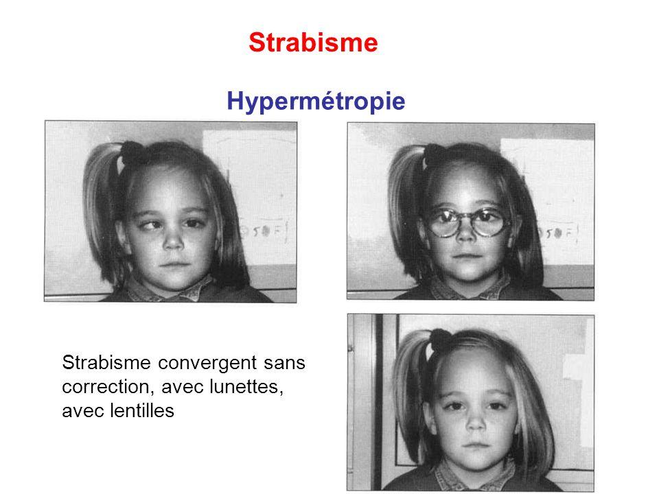 Strabisme Hypermétropie