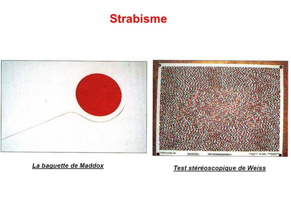 Test stéréoscopique de Weiss
