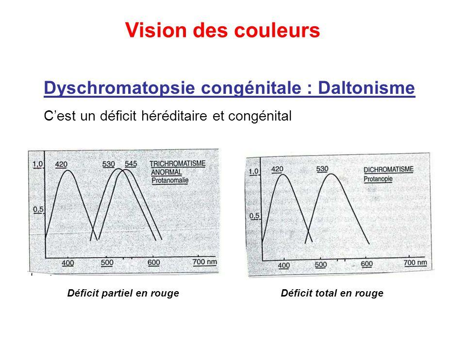 Vision des couleurs Dyschromatopsie congénitale : Daltonisme