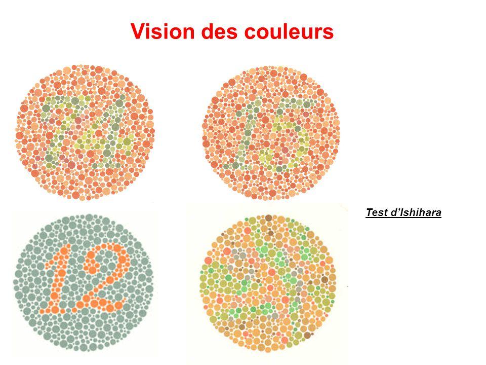 Vision des couleurs Test d'Ishihara