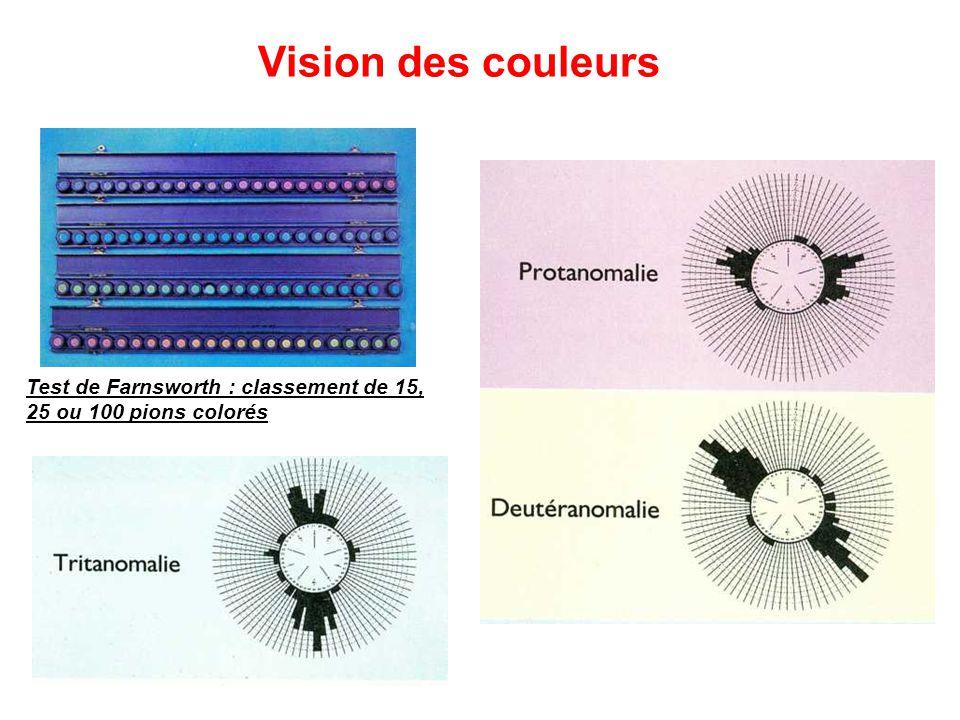 Vision des couleurs Test de Farnsworth : classement de 15, 25 ou 100 pions colorés