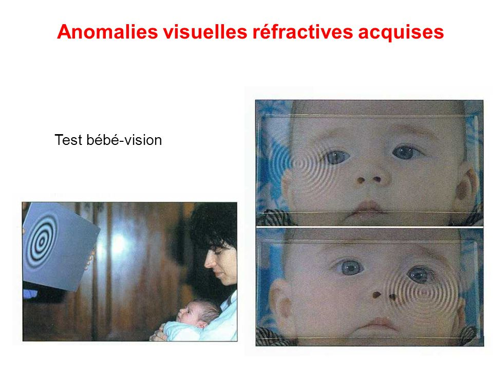 Anomalies visuelles réfractives acquises