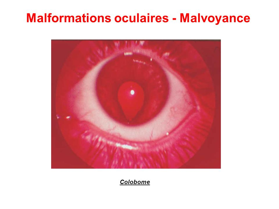Malformations oculaires - Malvoyance