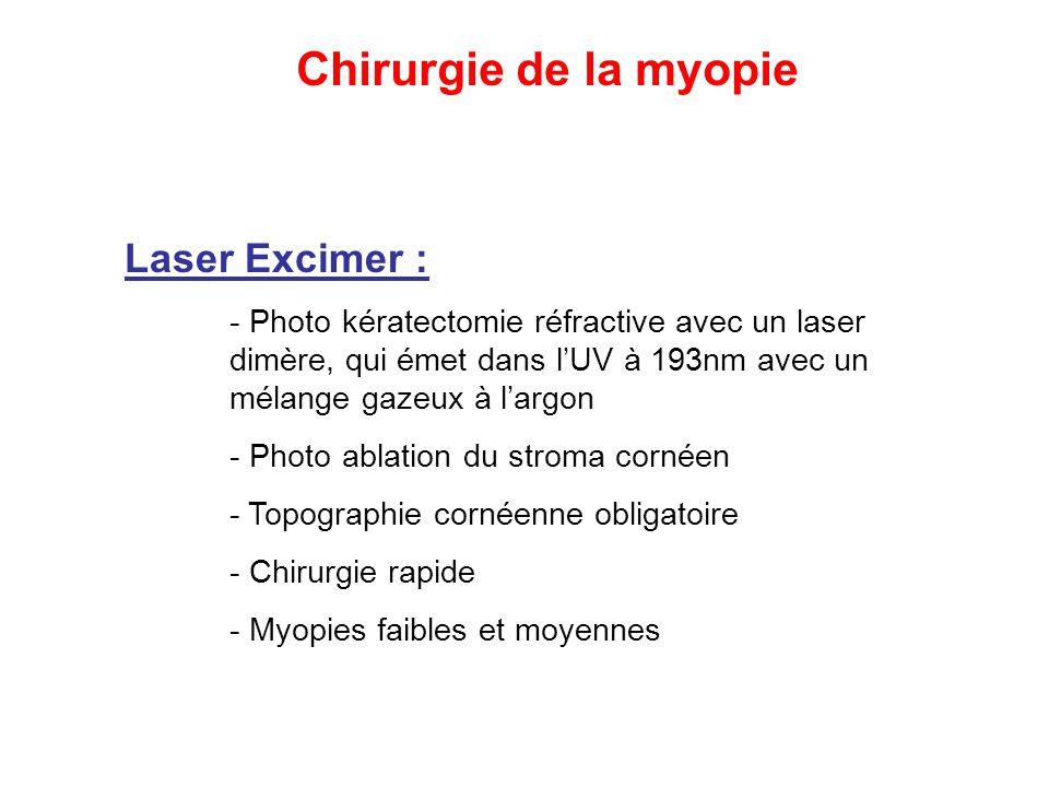 Chirurgie de la myopie Laser Excimer :