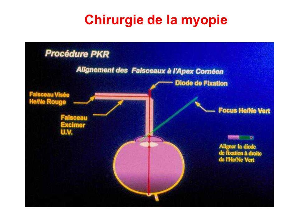 Chirurgie de la myopie