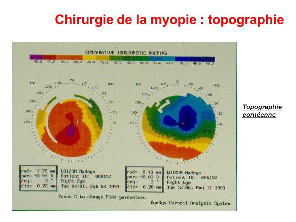 Chirurgie de la myopie : topographie