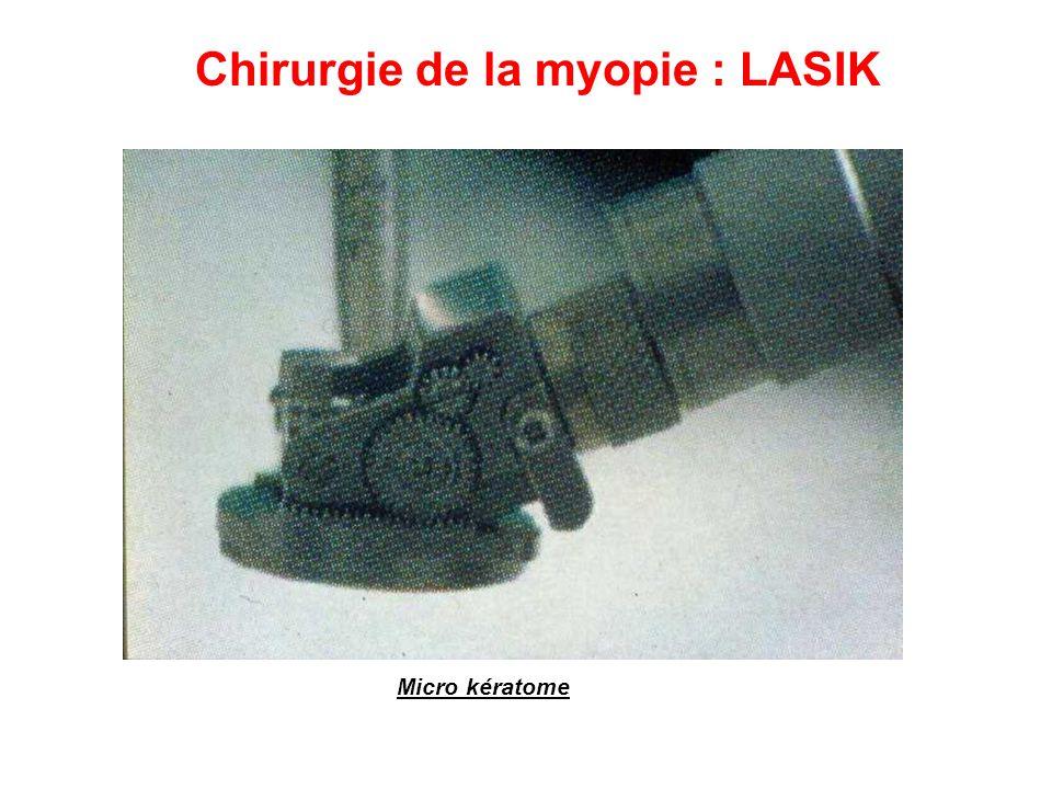Chirurgie de la myopie : LASIK
