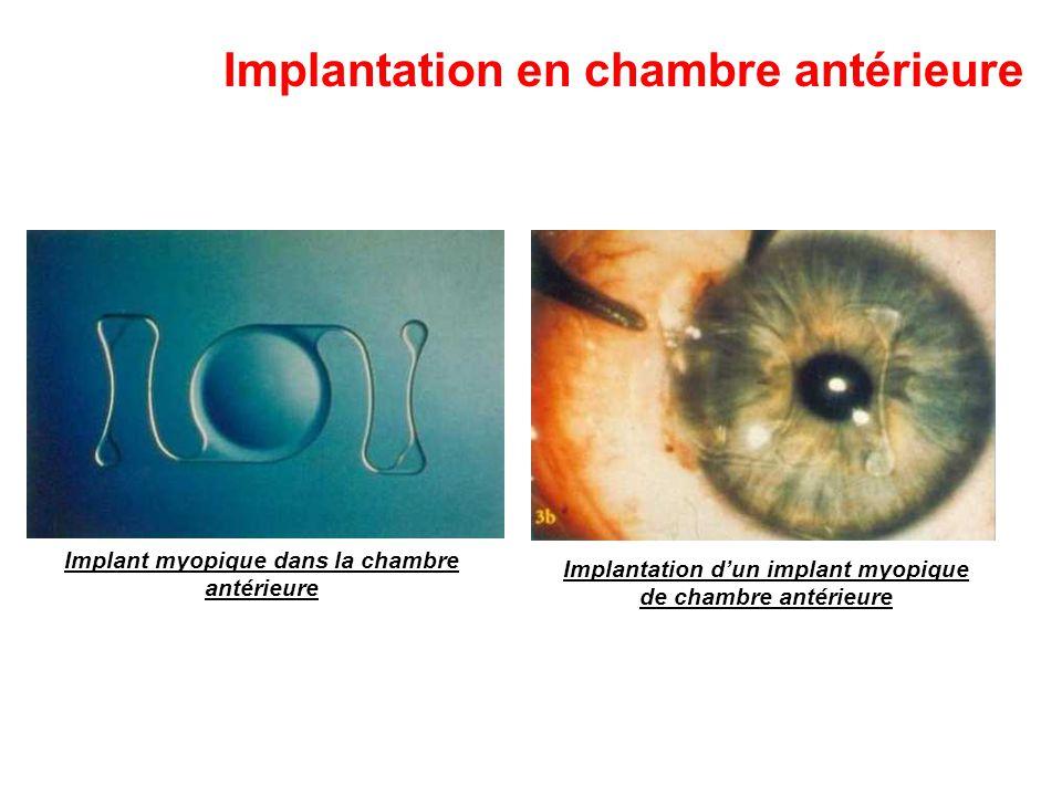 Implantation en chambre antérieure