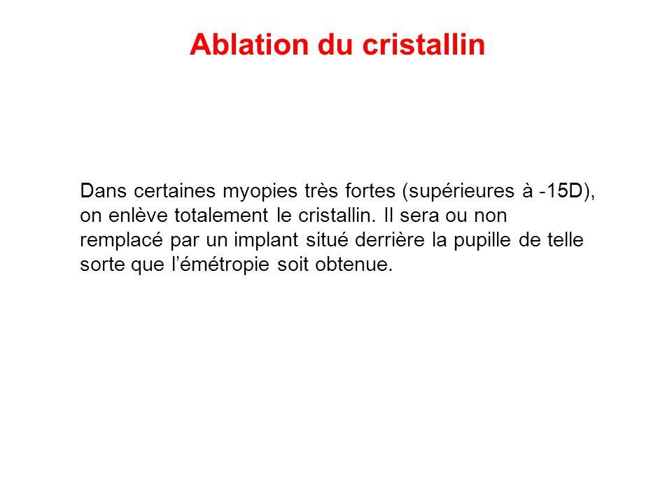 Ablation du cristallin