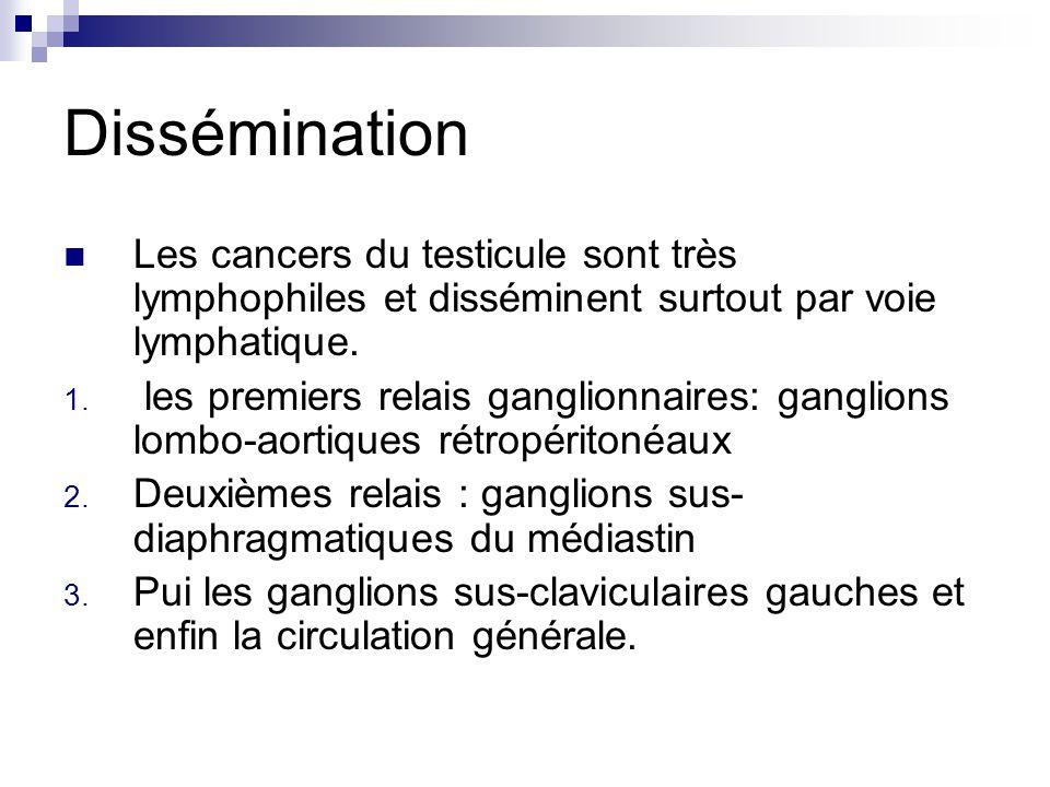 Dissémination Les cancers du testicule sont très lymphophiles et disséminent surtout par voie lymphatique.