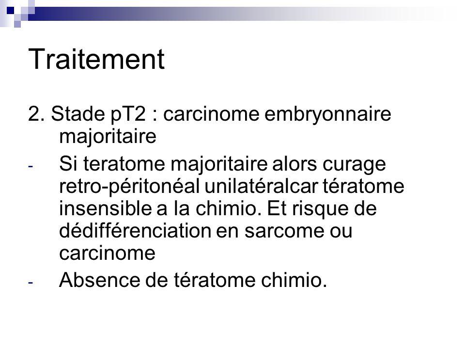 Traitement 2. Stade pT2 : carcinome embryonnaire majoritaire