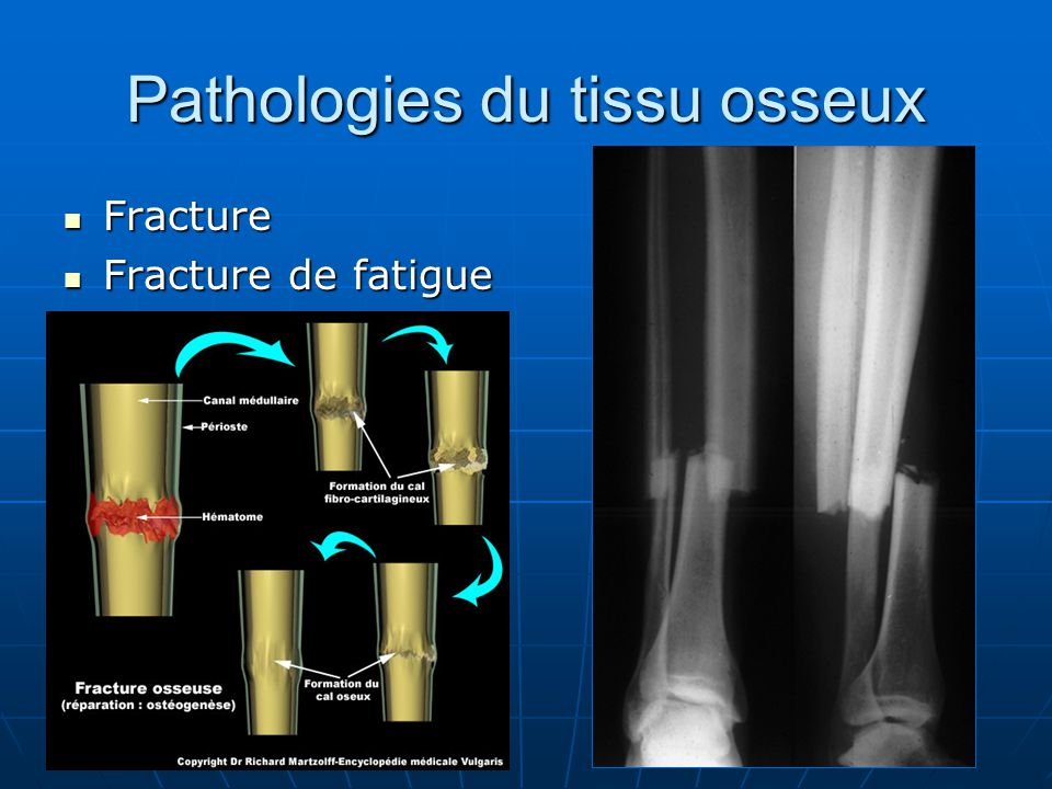 Pathologies du tissu osseux