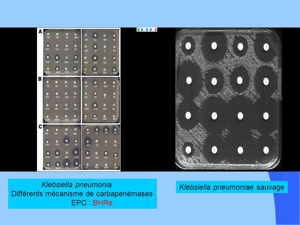 Klebsiella pneumonia Différents mécanisme de carbapenémases.