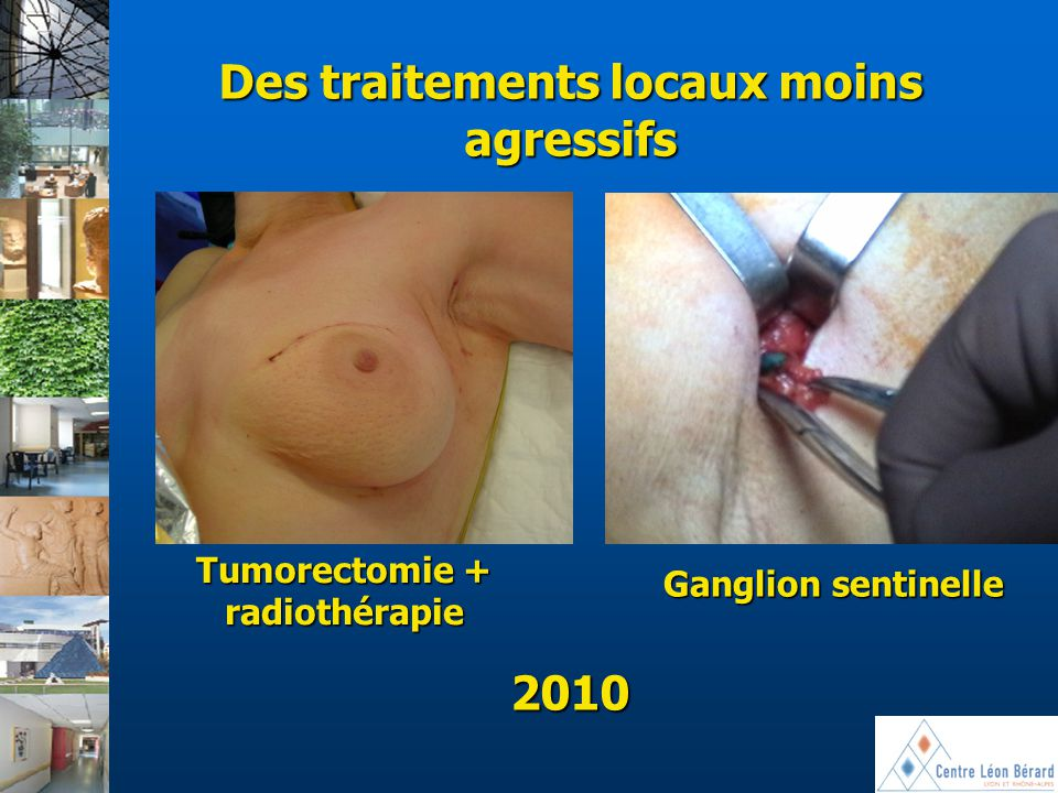 Des traitements locaux moins agressifs Tumorectomie + radiothérapie